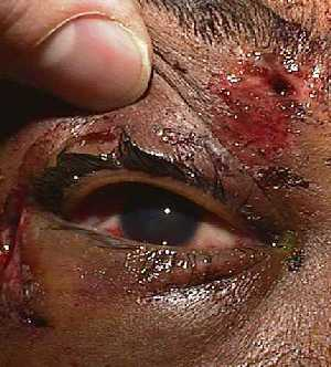 Blunt Orbital Trauma leading to zygoma, orbital floor fracture and intraocular wood.